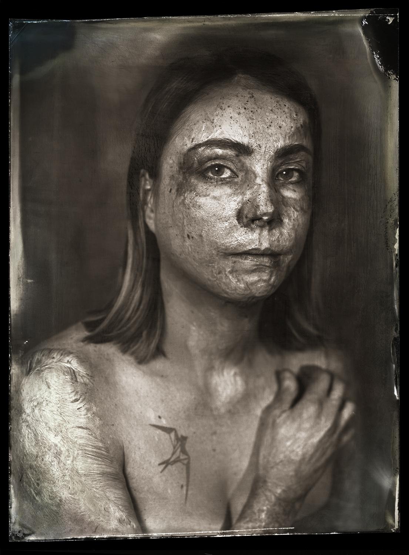 Burns survivor portrait (Pic: Clement Marion)