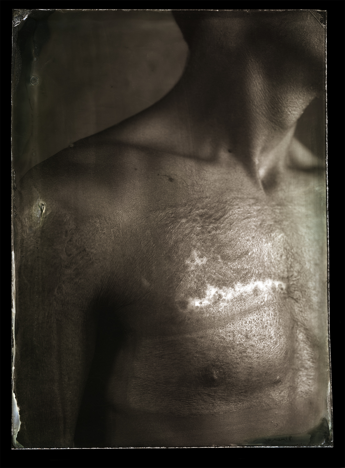 Burn-scarred chest (Pic: Clement Marion)