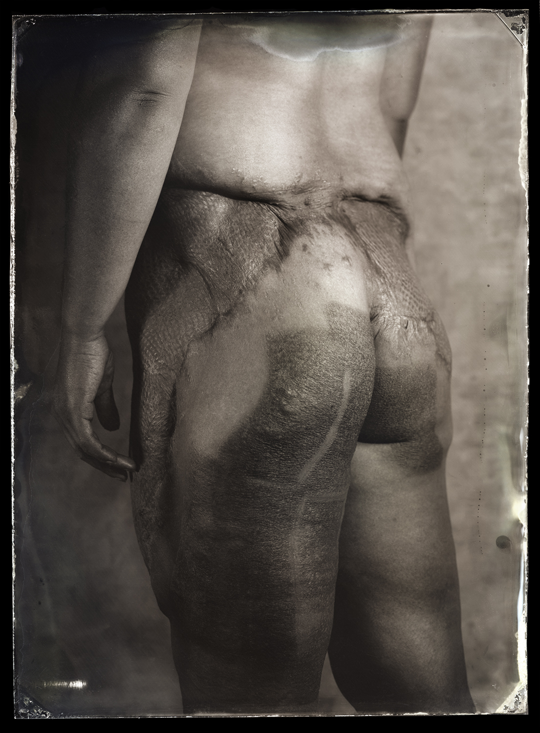 Detail of burns on lower back (Pic: Clement Marion)